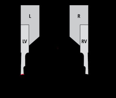 3002-0.5-2.5-16 LV G20 UHM30